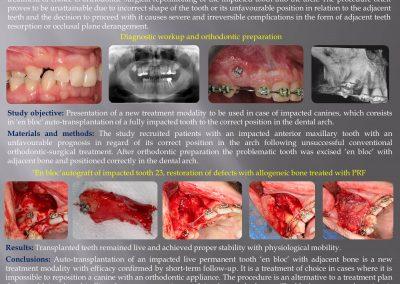 autotransplantacja zęba IMPACTED MAXILLARY CANINES Krasny